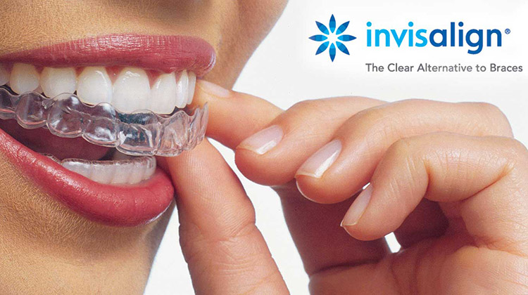Invisalign in Southlake, TX