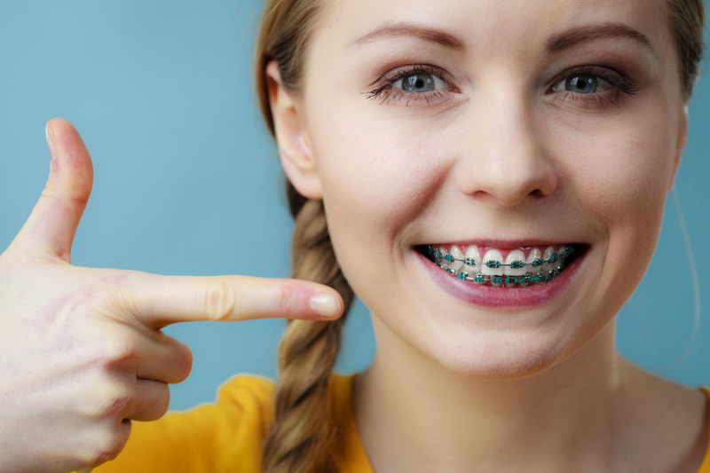 Traditional Braces in Southlake, TX